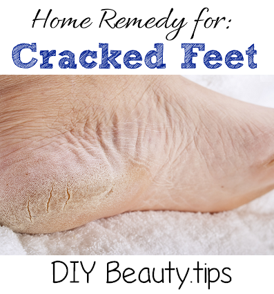cracked feet remedy