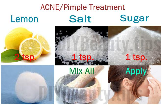 Acne & Pimple Treatment